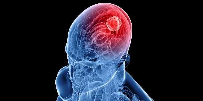 Beyin Tümörü